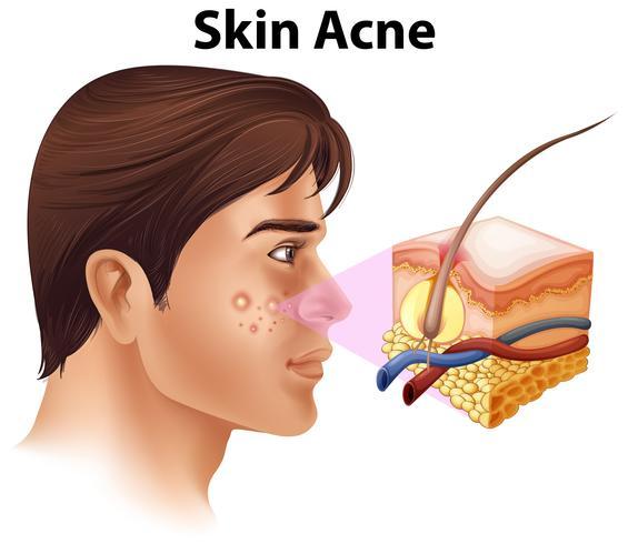 Un giovane con problemi di acne vettore