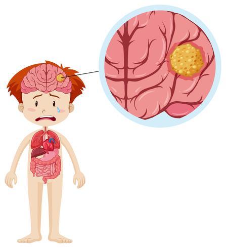 Piccolo ragazzo e cancro al cervello vettore