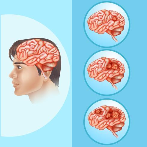 Diagramma che mostra il cancro al cervello nell'essere umano vettore