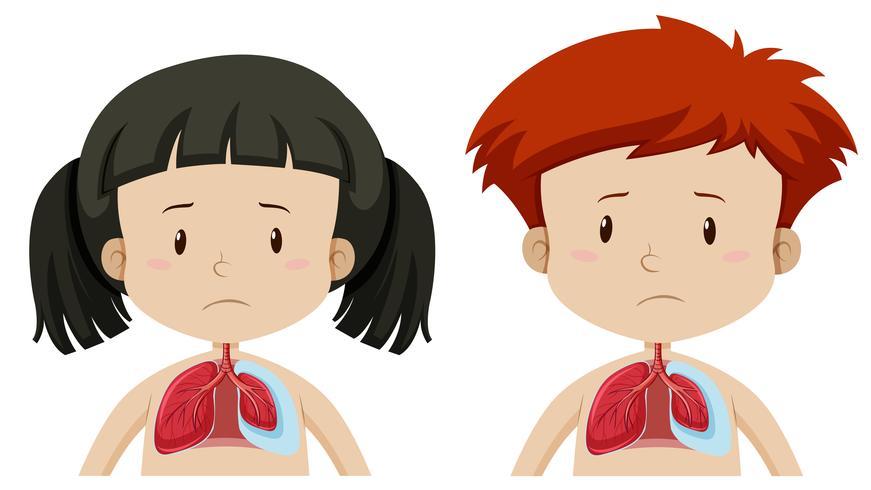 Ragazzo e ragazza con polmone vettore
