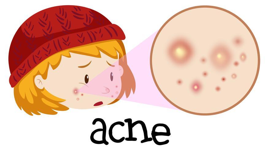 Un adolescente che ha l'acne sul viso vettore