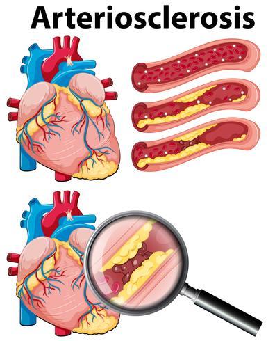 Un cuore con arteriosclerosi su sfondo bianco vettore