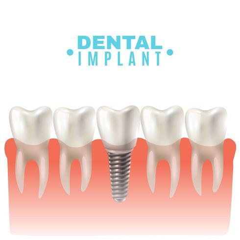 Poster per vista laterale modello di impianto dentale vettore
