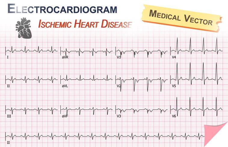 Elettrocardiogramma (ECG, ECG) di cardiopatia ischemica (infarto miocardico) e anatomia dell'icona del cuore vettore