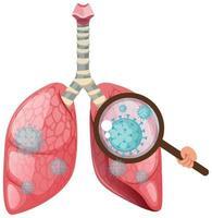polmoni umani con cellule di coronavirus