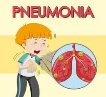 cartellonistica per polmonite con tosse da ragazzo vettore