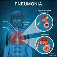 polmonite con diagramma dei polmoni umani