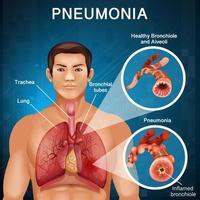 uomo con polmonite con polmoni cattivi nel corpo umano