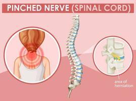 diagramma che mostra il nervo pizzicato nell'essere umano