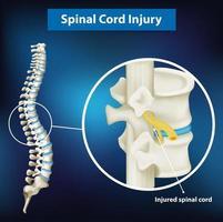 diagramma che mostra la lesione del midollo spinale