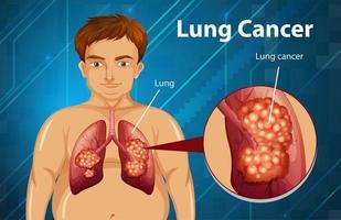 disegno informativo sul cancro del polmone