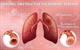 diagramma educativo della malattia polmonare ostruttiva cronica vettore