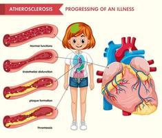 illustrazione medica scientifica dell'aterosclerosi
