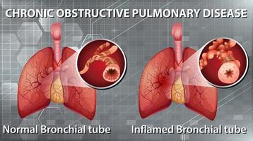 grafico malattia polmonare ostruttiva cronica vettore