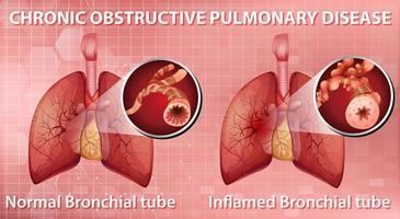 broncopneumopatia cronica ostruttiva vettore