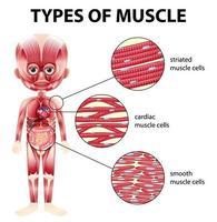 tipi di diagramma delle cellule muscolari