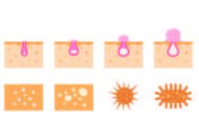 Set di icone di brufolo vettore