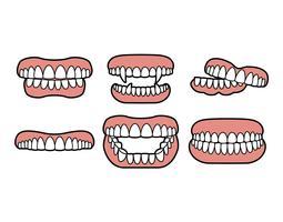 Insieme di vettore di denti falsi