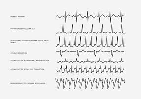 Ritmo cardiaco Set vettoriale