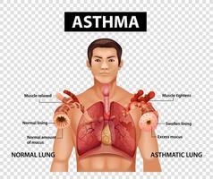 diagramma che mostra l'asma su sfondo trasparente