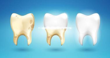 sbiancamento dei denti in stile 3d. differenza dopo la spazzolatura. illustrazione di realismo vettoriale. vettore