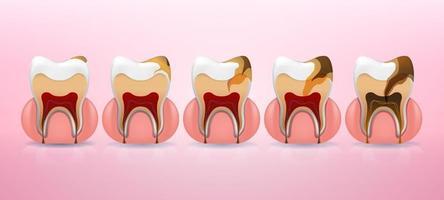 struttura della carie dei denti e fasi di posizionamento complete in stile realistico. macchia, carie dello smalto, dentello, pulpite, parodontite. illustrazione vettoriale 3d.