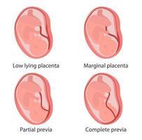 quattro tipi di illustrazione del concetto di placenta previa vettore