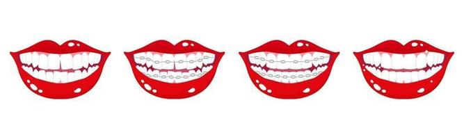 Vector cartoon set di bocche sorridenti con fasi di allineamento dei denti utilizzando parentesi graffe metalliche ortodontiche su uno sfondo bianco