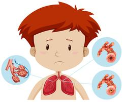 Un ragazzo con bronchite vettore