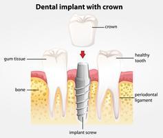 Impianto dentale con corona vettore
