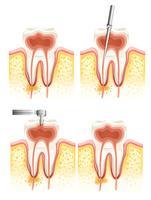 Canalare dentale vettore