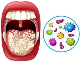 Un'infezione da virus della bocca umana vettore