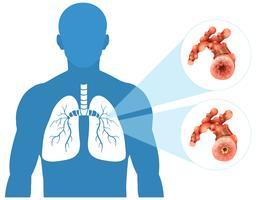 Polmone umano su sfondo bianco vettore