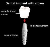 Un impianto dentale con corona vettore