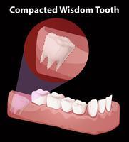 Diagramma del dente di saggezza compattato vettore