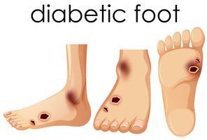Piede umano con diabetico vettore