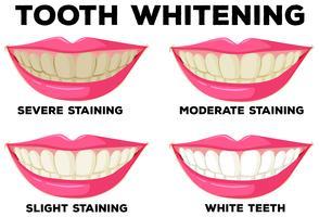 Processo di sbiancamento dei denti vettore