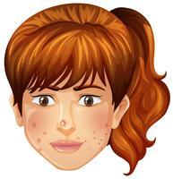 una ragazza con problemi di brufoli