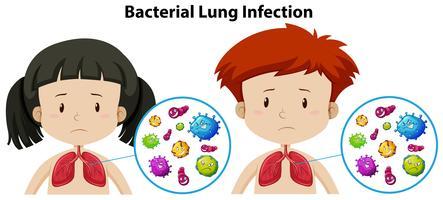 Un insieme di infezione polmonare batterica