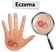 Una mano umana con Eczema