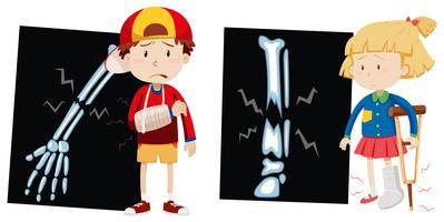 Ragazzo e ragazza con ossa rotte vettore