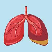 Polmone umano con mesotelioma pleurico vettore