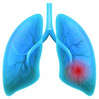 Malattia polmonare su sfondo bianco