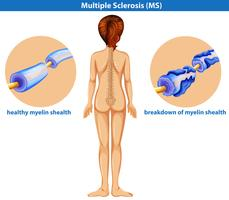 Un vettore medico di sclerosi multipla