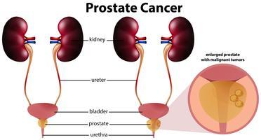 Cancro alla prostata su sfondo bianco