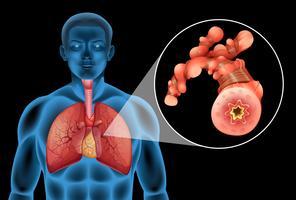 Uomo umano con tumore nei polmoni