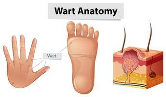 Anatomia umana verruca a portata di mano e piede vettore
