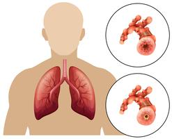 Malattia polmonare ostruttiva cronica umana