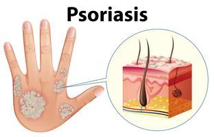 Diagramma che mostra la psoriasi sulla mano umana vettore