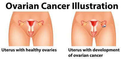 Diagramma che mostra il cancro ovarico in umani vettore